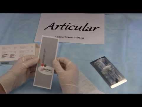 Ce ierburi tratează artrita