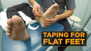 Relieve Pain From Fallen Arch With This EASY Taping Method
