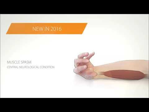 Fluido nelle articolazioni delle dita provoca le mani