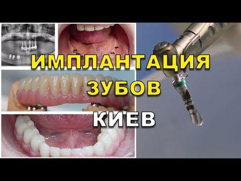 Імплантація зубів Київ зубні імпланти  ціни тут  - Люмі-Дент 93aecf39b4500