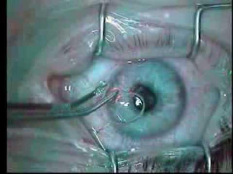 video Ogen laseren thumbnail