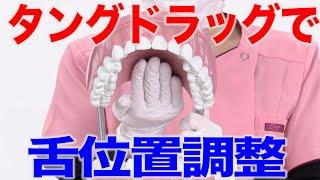 舌の位置を整えるタングドラッグって?