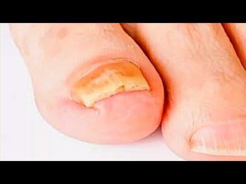 Die Beschädigung der Finger und der Nägel der Beine die Behandlung