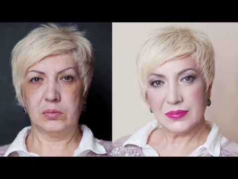 Средства от пигментных пятен на лице до и после