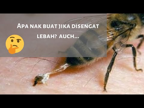 Video Menangani Sengatan Lebah