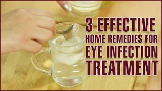 3 Easy & Effective Home Remedies For EYE INFECTION TREATMENT
