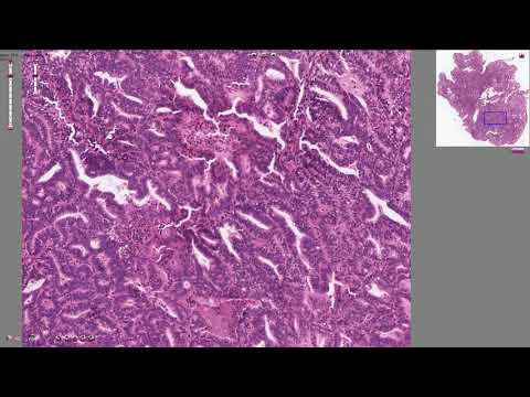 Soigner le papillomavirus chez lhomme
