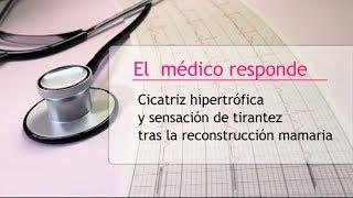 Cicatriz hipertrófica y sensación de tirantez tras la reconstrucción mamaria