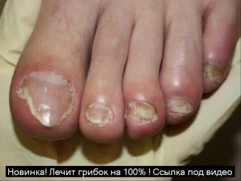 Die Gesundheit der Nägel gribok die Symptome