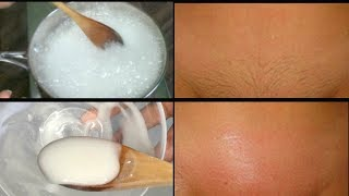 BAKING SODA REMOVE PUIBIC HAIR, 4 DAYS TO COMPLETELY REMOVE PUBIC HAIR NO SHAVING| Khichi Beauty