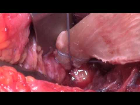 Distal Biceps Tendon Reconstruction with Achilles Allograft