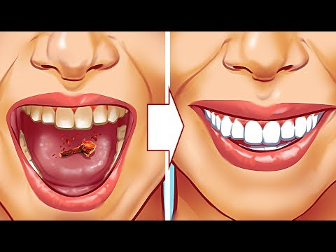 Remova o tártaro dos seus dentes de forma natural