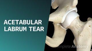 Acetabular Labrum Tear | Pathologies