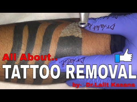 TATTOO REMOVAL by Dr Lalit Kasana (IN HINDI) - смотреть