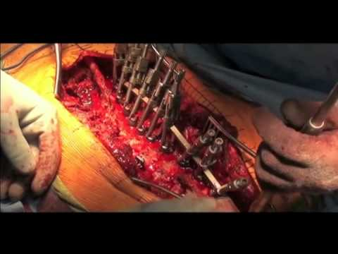 Curvatura di spina dorsale