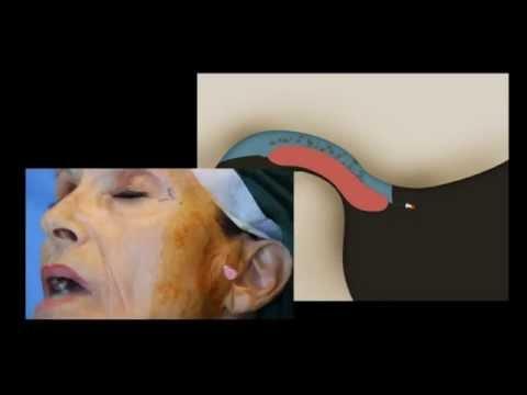 Condrosi trattamento per la schiena