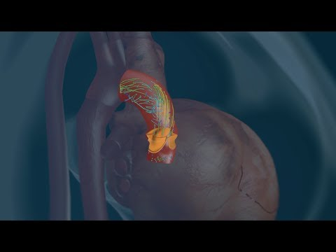 A mathematical microscope for non-invasive heart diagnostics (©EPFL Mediacomm)