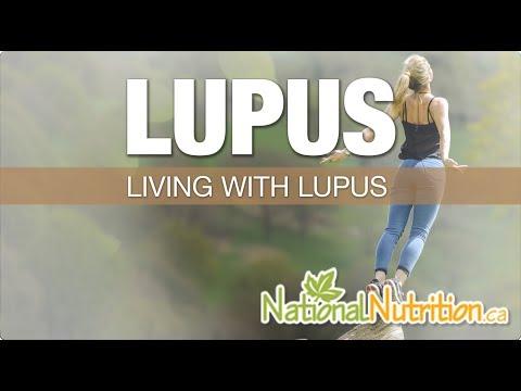 Natural Health Reviews - Lupus