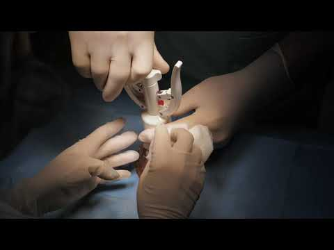 Adenoma prostatico Hemlock