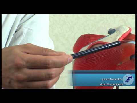 Tubercolosi dellarticolazione temporo-mandibolare