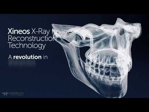Xineos X-Ray Image Reconstruction Technology