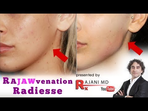 RaJAWvenation Jawline Contouring Radiesse Restylane Video