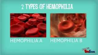 Blood - Hemophilia