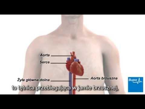 Przypomnienie pacjentów z nadciśnieniem