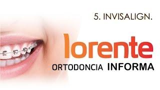 Ortodoncia Invisible Invisalign - Lorente Ortodoncia
