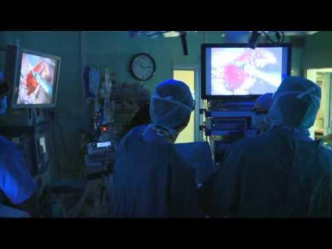 Esercizio con un bastone per osteochondrosis cervicale di video