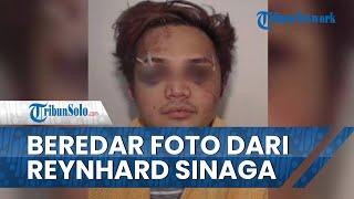 Beredar Foto Reynhard Sinaga Babak Belur saat Ditangkap, Ternyata Dipukul Korban yang Seorang Atlet