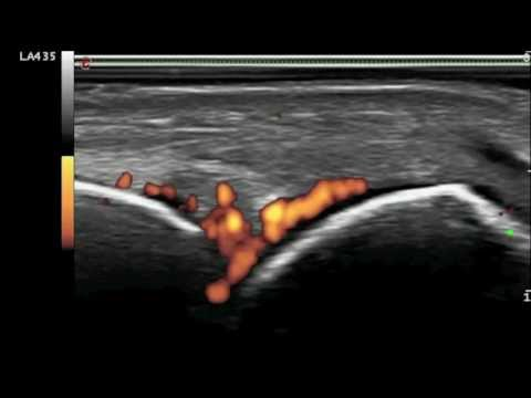 Analgesico con dolore alla schiena durante lallattamento