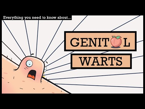 Wart treatment nhs