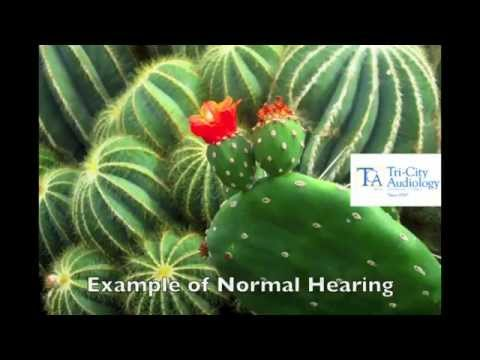 What does hearing loss sound like?