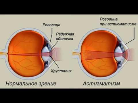Причина внезапной потери зрения на один глаз