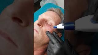 Plasmapen behandling av nedre øyelokk