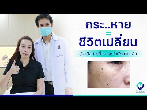 Thrombophlebitis ยาทางหลอดเลือดดำ