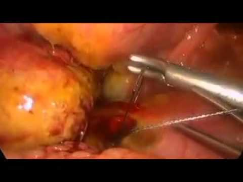 Laparoscopic Repair of a Perforated Duodenal Ulcer in a Child's Class C Cirrhotic Patient