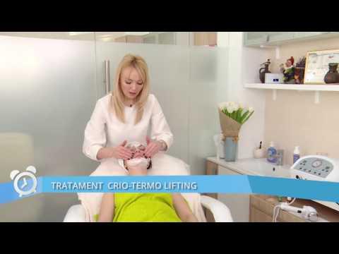 Articulația doare sub sarcină