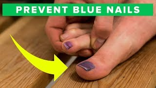How To Prevent Blue Toe Nails - Learn How To Avoid Black Nails