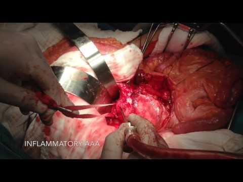 เส้นเลือดขอดผ่าตัดคณะ