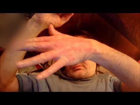 Les rappels le psoriasis sur la tête