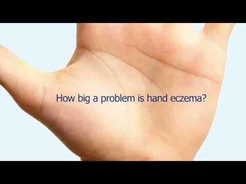 Quello che efficacemente aiuta da psoriasi