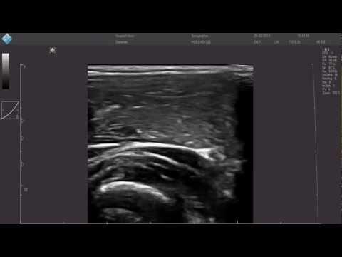 Ginocchio osteoartrite Fase 3