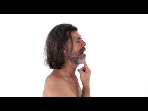 Sia per il trattamento di displasia dellanca