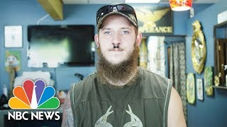 Former Skinhead David Cutlip Seeks Redemption By Covering Hateful Tattoos For Free | NBC News