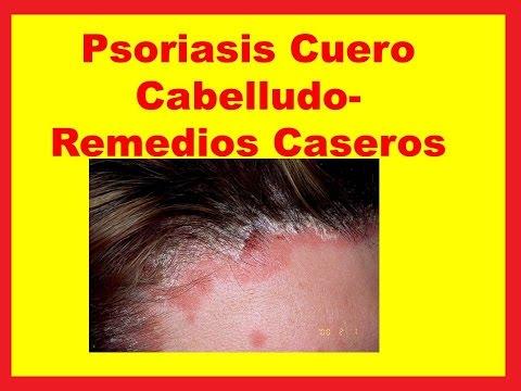 Atopichesky la dermatitis por la eccema