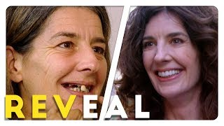 Dental Surgery Transformation!  | 10 Years Younger | Reveal
