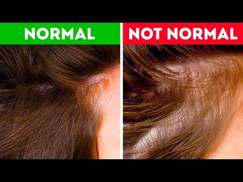 What Your Hair Can Tell You About Your Health