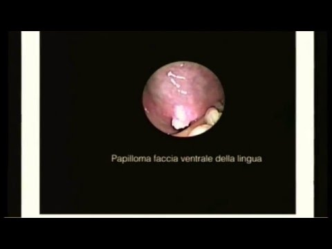 Schistosomiasis and bladder cancer